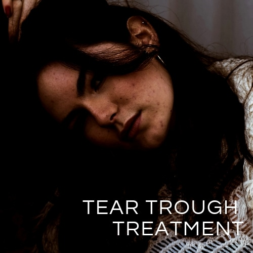 Tear Trough treatment Brisbane