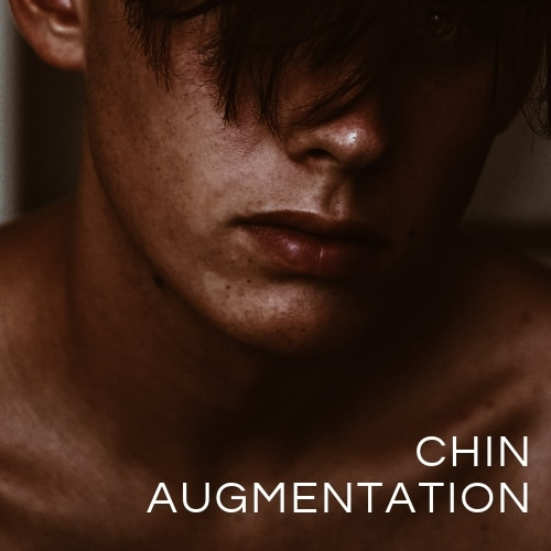 Chin Augmentation Brisbane