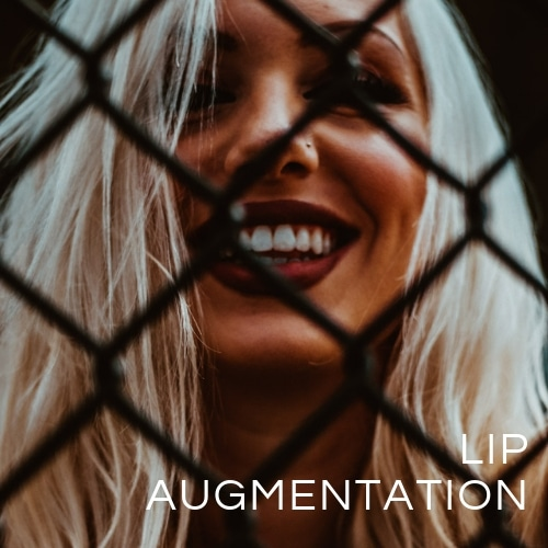 Lip Augmentation Brisbane