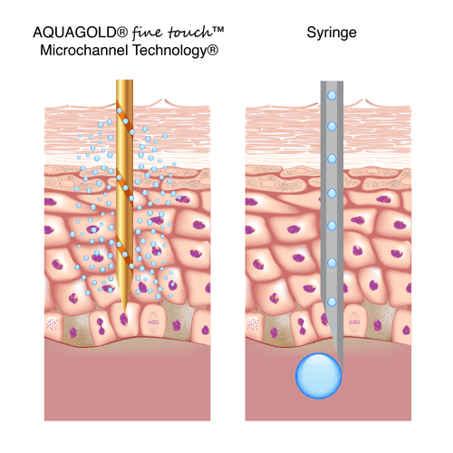 aquagold syringe